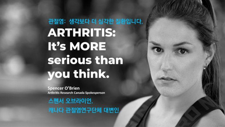 관절염 앓는 캐나다인 600만명